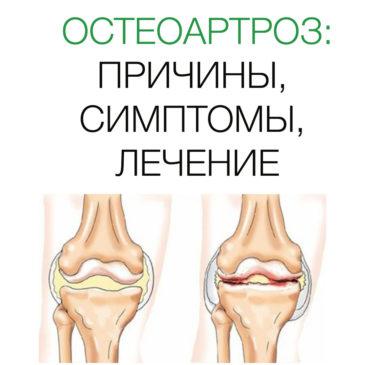 Остеоартроз: Причины, Симптомы, Лечение