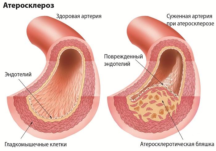 лечение инфаркта