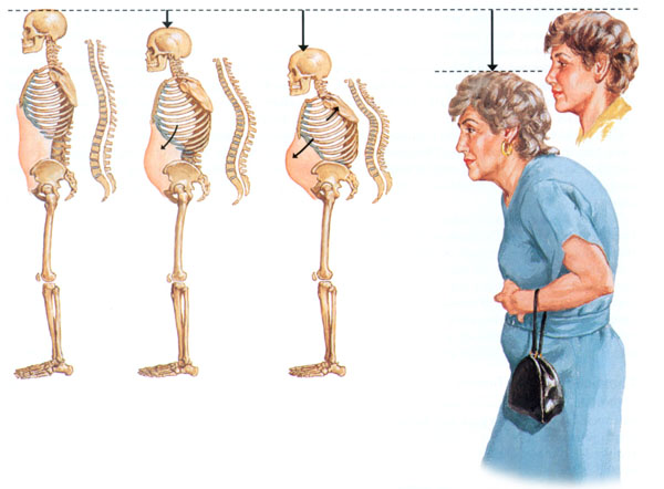 остеопороз и менопауза