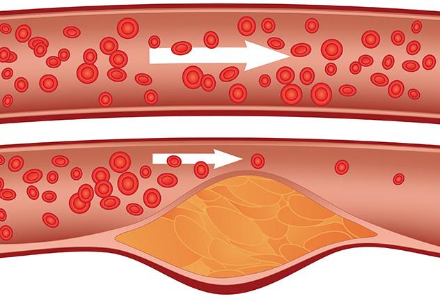 как снизить уровень холестерин в крови