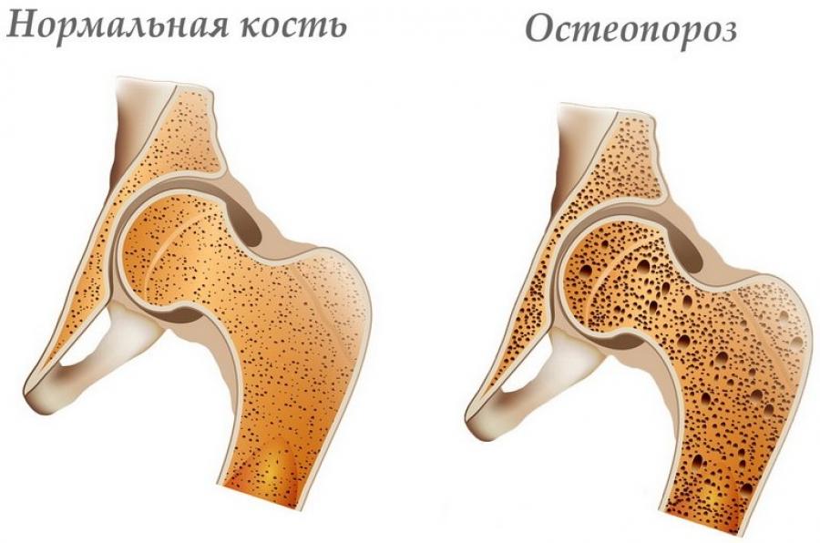 остеопороз