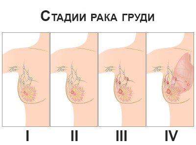 признаки онкологии